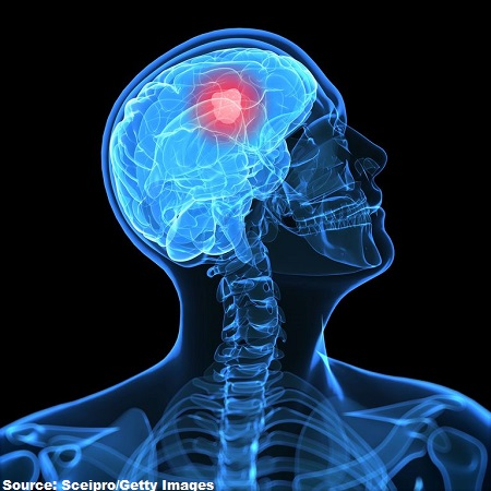 glioblastoma-sceipro-getty-images-edited